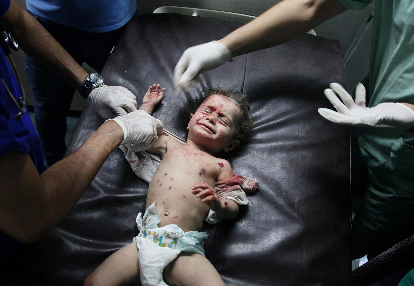 A Palestinian baby, injured in an Israeli airstrike.