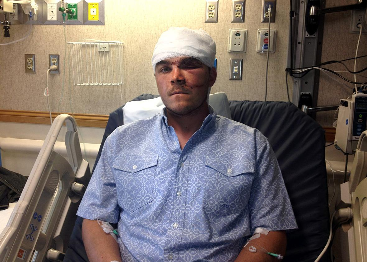 Chase Dellwo, 26, in the hospital on Oct. 4, 2015, after survivi,Chase Dellwo, 26, in the hospital on Oct. 4, 2015, after surviving a grizzly bear mauling Saturday morning northwest of Choteau.