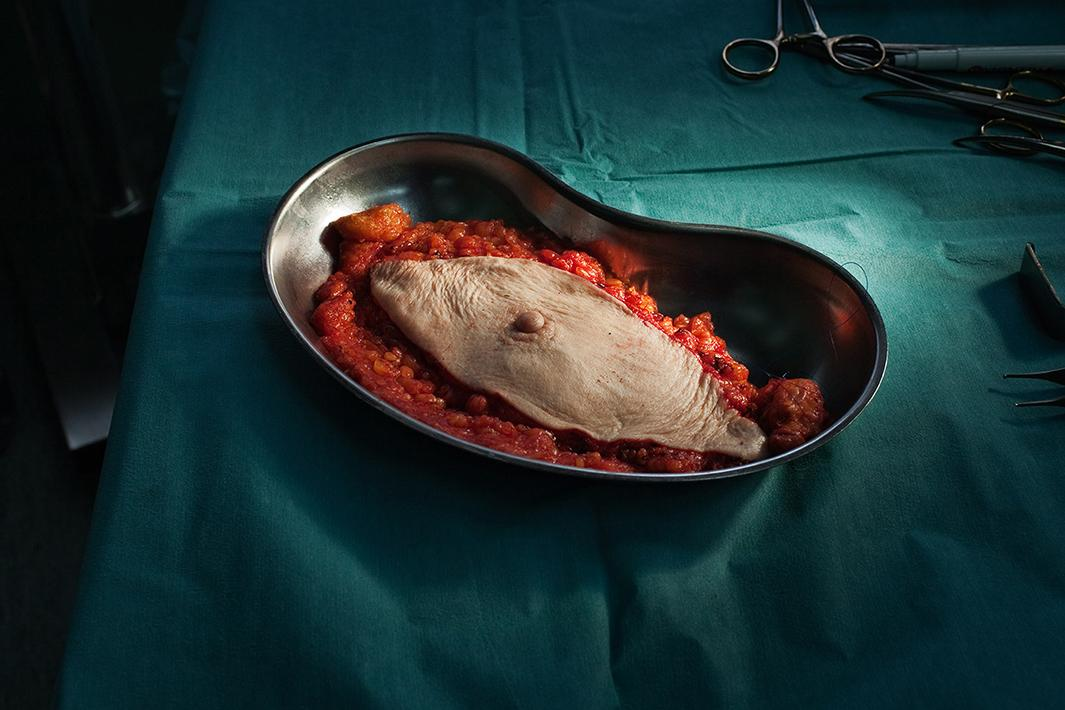 Breast cancer (whole breast removed).