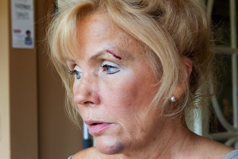 Debra with a cut over eyebrow and a bruised chin.