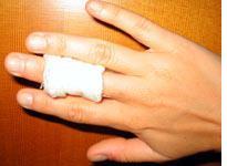Blistered and bandaged finger