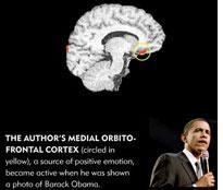 Goldberg's medial orbitofrontal cortex. Click image to expand.