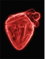 X-ray of heart