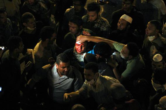 An injured supporter of deposed Egyptian President Mohamed Mursi is helped during clashes with riot police on the Sixth of October Bridge over the Ramsis square area in central Cairo.