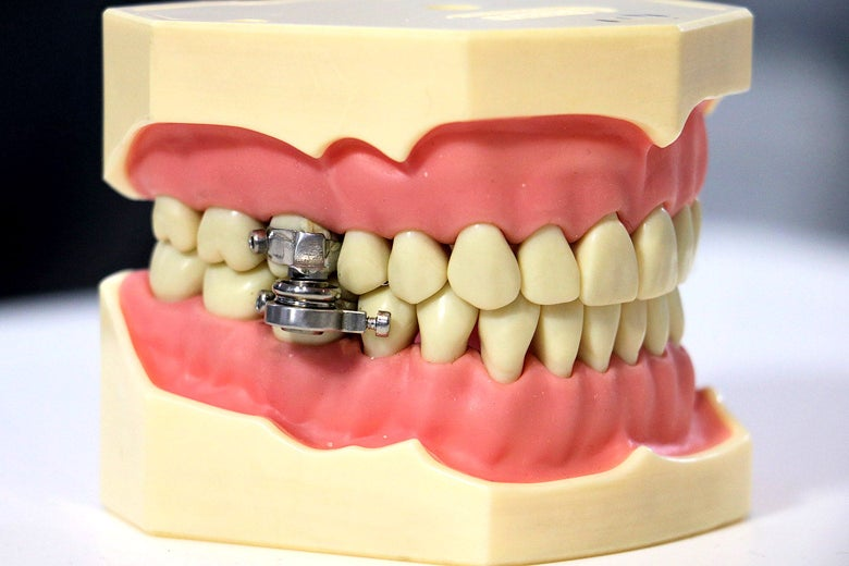 A model of a jaw and teeth with the magnetic lock holding the jaw together.