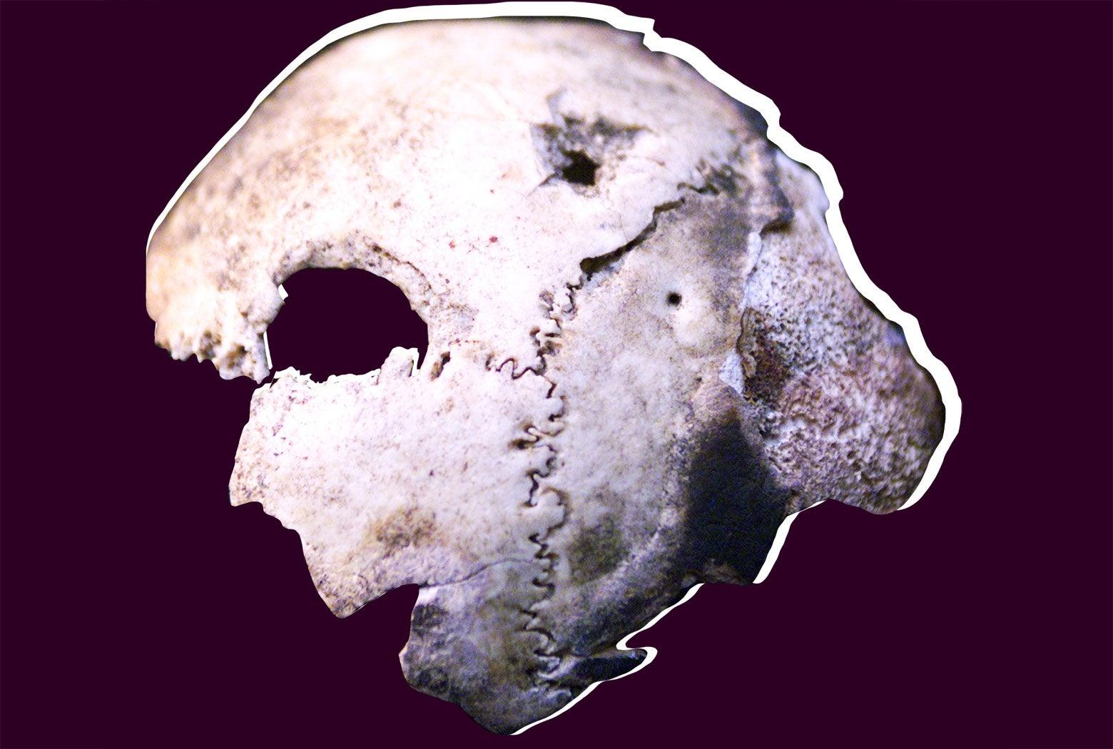 A skull fragment.