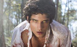 Tyler Posey in Teen Wolf. Click image to expand.