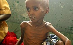 Somalia famine. Click image to expand.