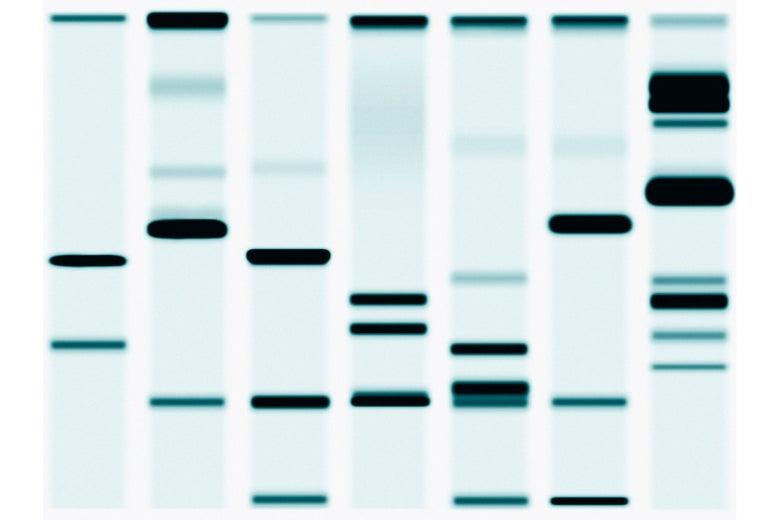 A DNA fingerprint.