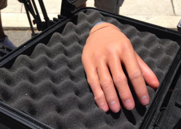 Touch Bionics iLimb prosthetic hand