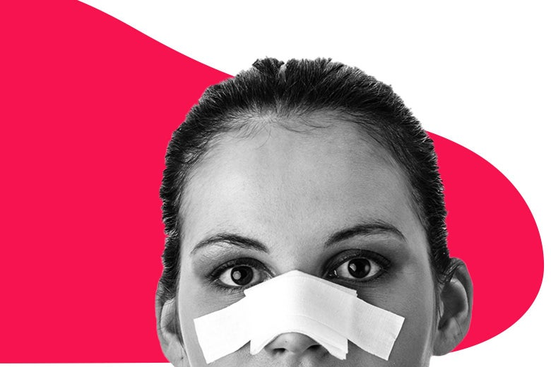 Photo of a woman with a bandage over her nose.