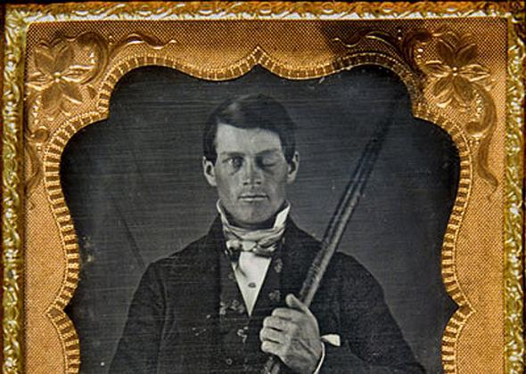 Cased-daguerreotype portrait of Phineas P. Gage holding the tamping iron that injured him.