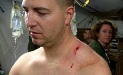 """Staff Sgt. Richard """"Doc"""" Blakley's sniper wound"""