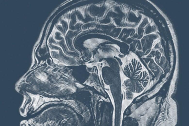 MRI of brain.
