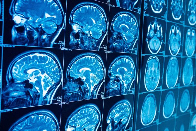 Screens of brain scans