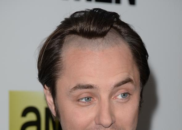 Mad Men Pete Campbell S Receding Hairline From Season 1