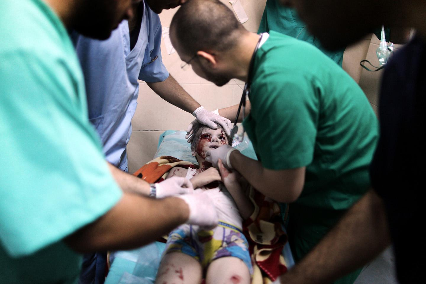 Doctors treat a Palestinian kid, who was injured in an Israeli attack.