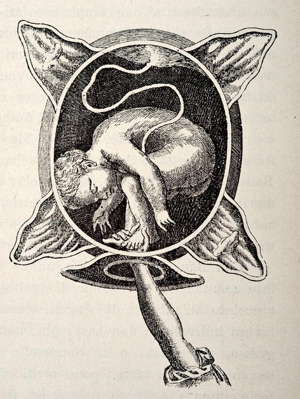 A medical engraving from 'The Court Midwife' (by Justine Siegemund) illustrates a breech birth, 1690.