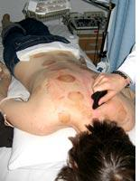 """Two days after cupping, I undergo a """"scraping"""" treatment to increase body          temperature. Click image to expand."""