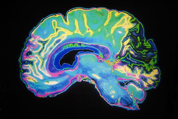 Colored MRI Scan Of Human Brain.