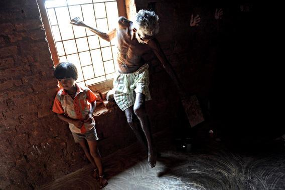 suffering from Leprosy, waits next to a window as a team of unseen doctors from the Bombay Leprosy Project.