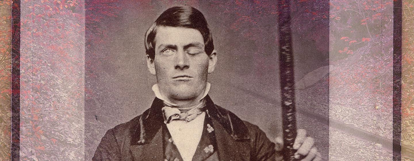 Phineas Gage, Neuroscience's Most Famous Patient