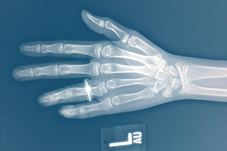 X-ray of a left hand wearing a wedding ring.