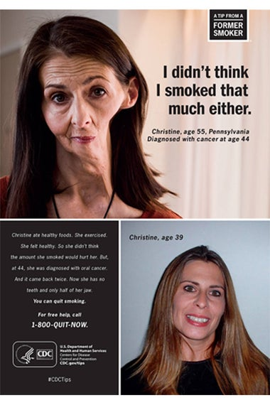 A woman with half of her jaw removed from smoking.