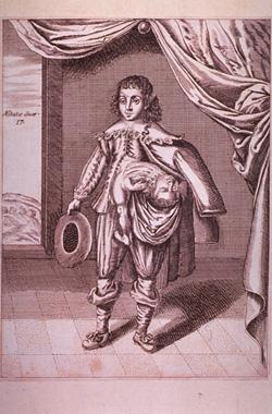 A boy with a partial twin growing from his side, 1686. Click image to expand.