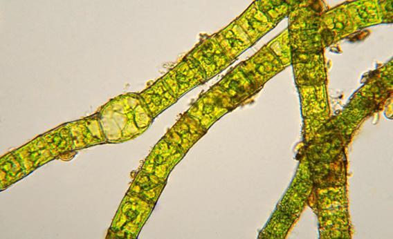 Filamentous green algae.