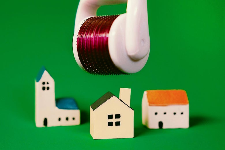 Photo illustration of an Ora Microneedle Face Roller System above toy houses.