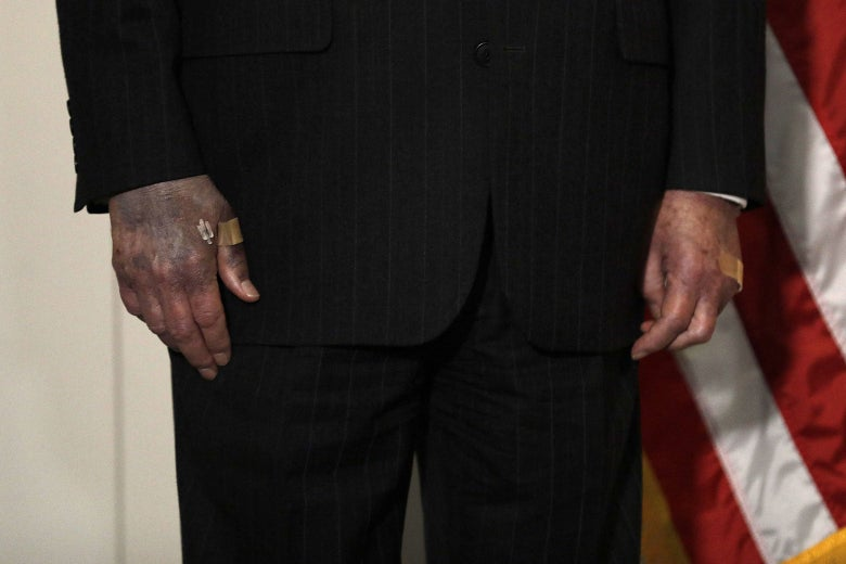 Close-up of Mitch McConnell's bandaged hands. The right hand is bruised to a purplish hue.