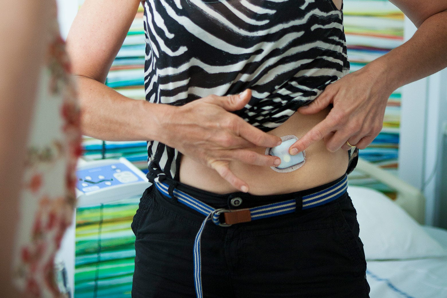 A person with their shirt pulled up to show off an insulin pump against her stomach.