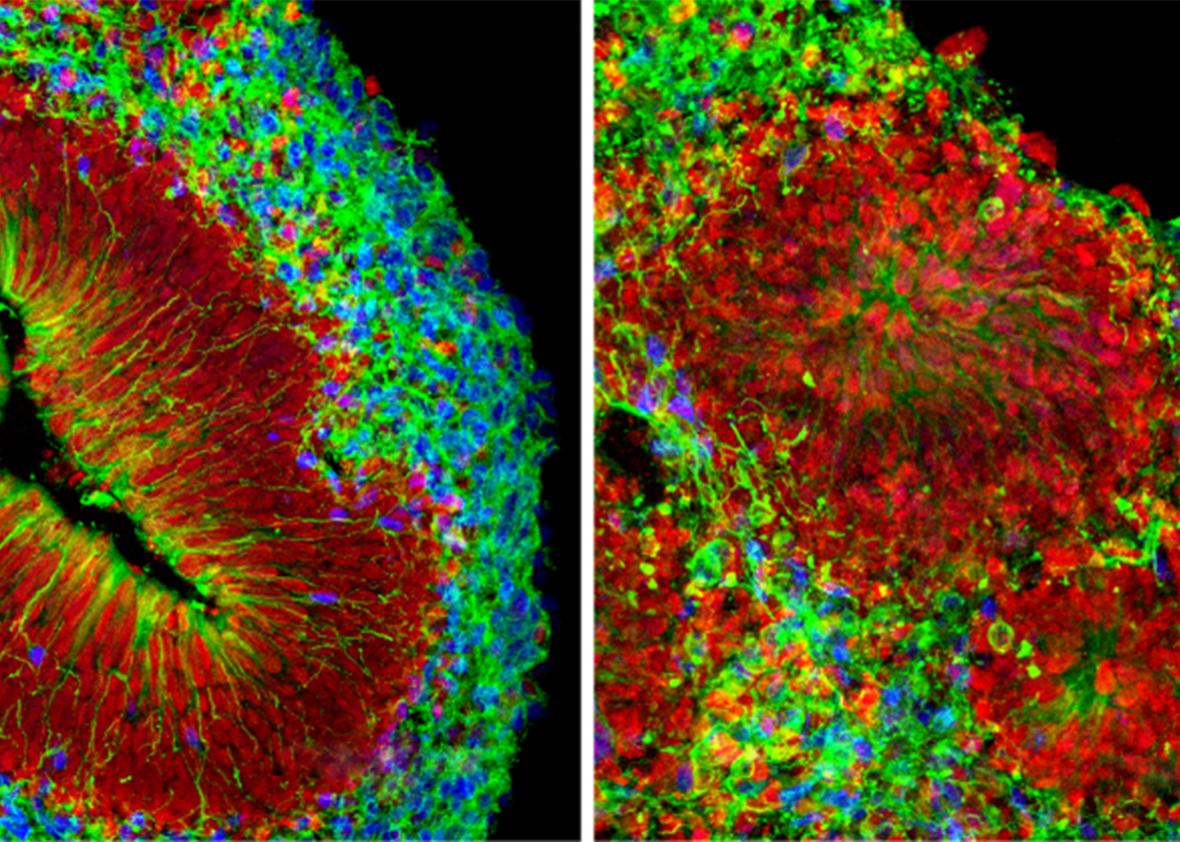 At right, is a Zika virus infection, which destroyed layers of a cultured mini-brain, left.
