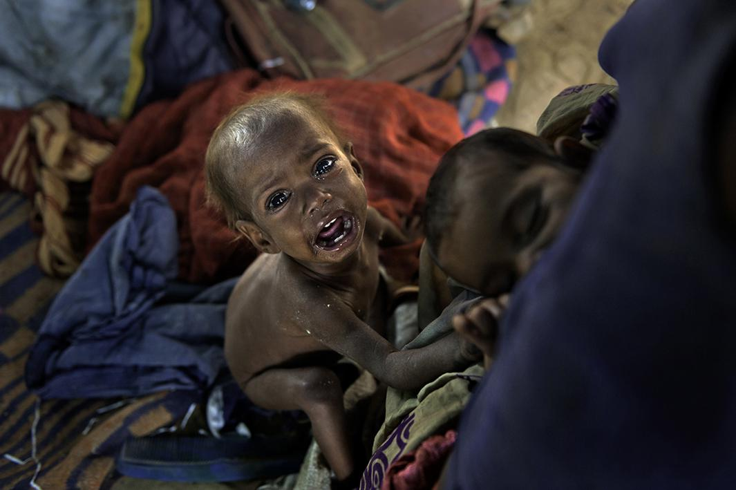 """In the Charan slum settlement of northern India, Kalpana, 20, starves one of her children Sangeeta, 2, while her sister Sarita, 5-months-old, right, sleeps in comfort, above right, in her mother's arms. Sangeeta only weighs 9 pounds. Children are more likely to appeal to the sympathy of those inclined to give to beggars, so those who beg use children for this purpose. Worse, sometimes as in this case a child is staved and carried about by the child's parent while she begs on the streets or rented out to another beggar to be used as an object of sympathy in the hope of generating more income over the course of a given day. Sometimes these """"extra funds"""" are used to feed other children, thus, in practice, one child is sacrificed for he sake of others. Sangeeta has since been helped by the Tong-Len Charitable Trust's mobile medical clinic at the Charan slum settlement, Dharamsala, India. But according to the World Bank 19,000 children die a day from preventable causes."""