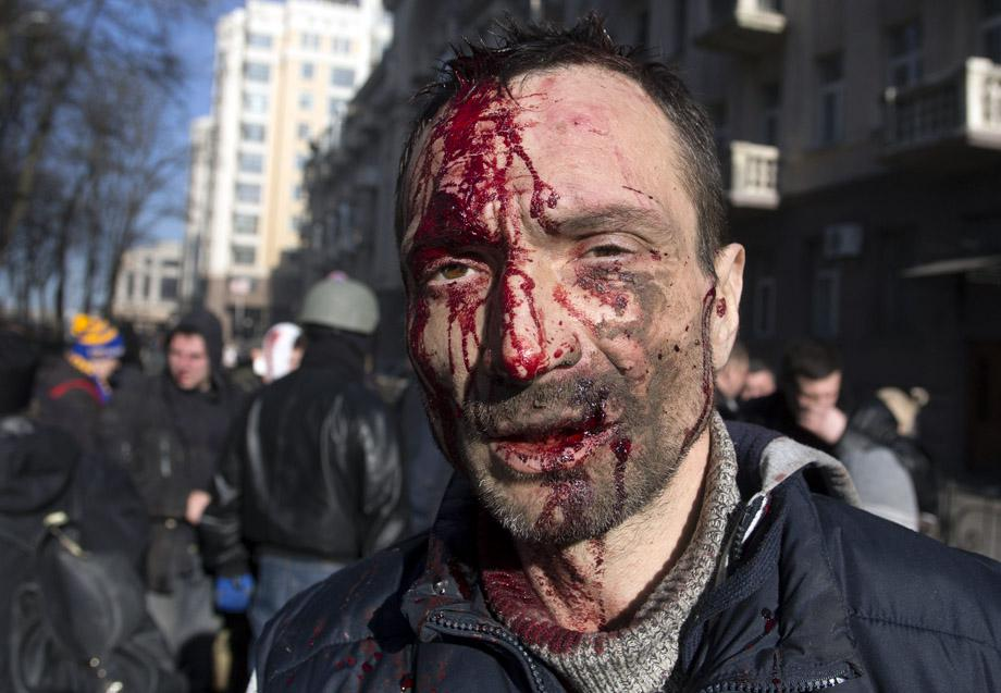 A man injured in clashes between protesters and government police in Kiev on Feb. 18, 2014.