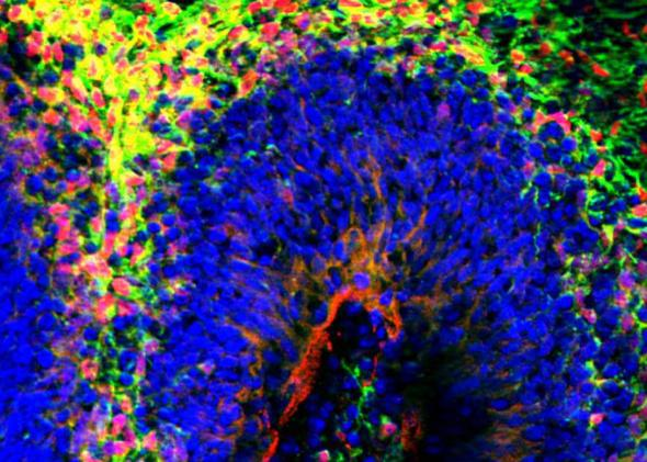 When suspended in culture, human stem cells may develop into miniature brains with distinct layers.