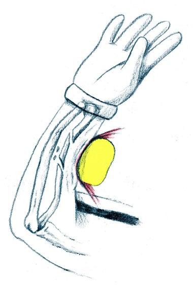 FogoTennis ball striking the arm.