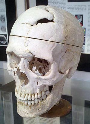 The skull of Phineas Gage on display at the Warren Anatomical Museum at Harvard Medical School.