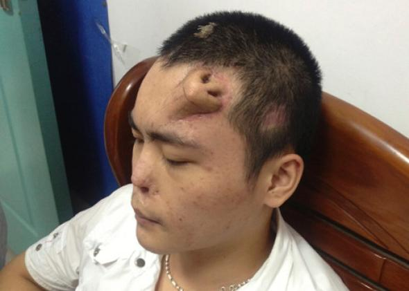 A new nose, grown by surgeons on Xiaolian's forehead, is pictured before being transplanted to replace the original nose, which is infected and deformed, at a hospital in Fuzhou, Fujian province September 24, 2013.