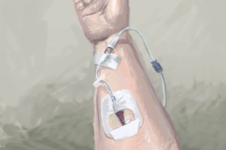 A drawing of an IV going into a forearm.