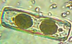 A living diatom found in the sample