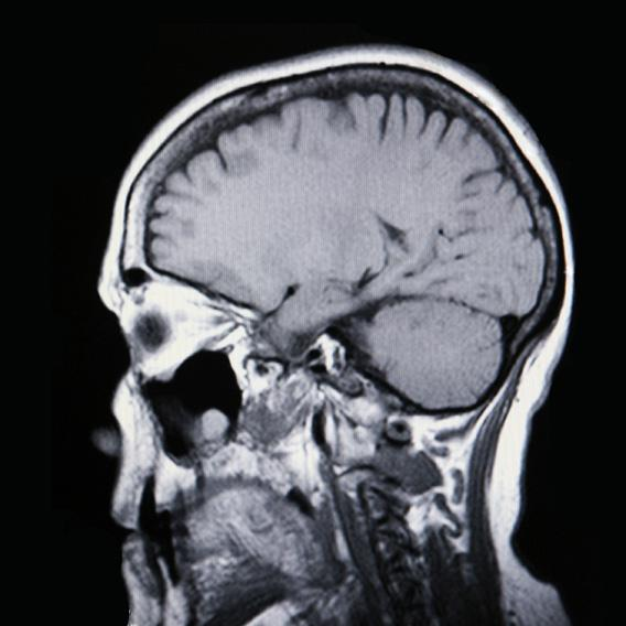 Medical MRI Image Showing Brain and Skull