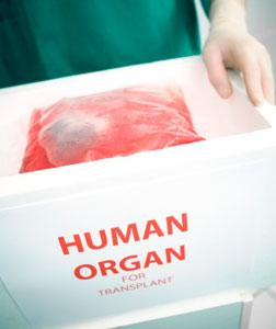 Does Israel's plan to solve its organ problem work?
