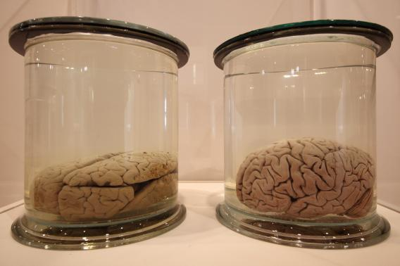 Preserved brains are displayed at the new 'Brains' exhibition at the Wellcome Collection on March 27, 2012 in London, England.